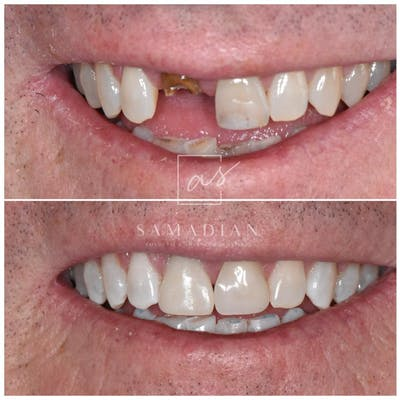Dental Implants Gallery - Patient 59681498 - Image 1