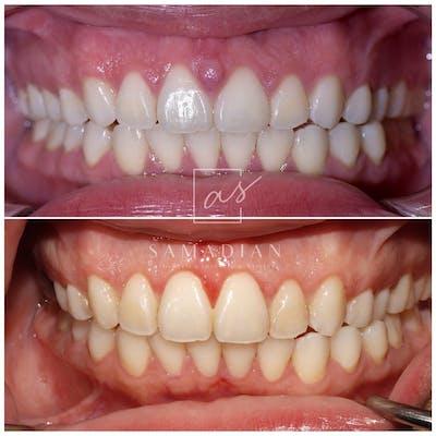 Gum Lift Gallery - Patient 59681506 - Image 2