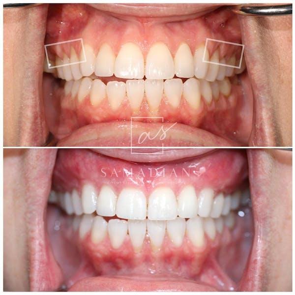 Gum Lift Gallery - Patient 59681570 - Image 1