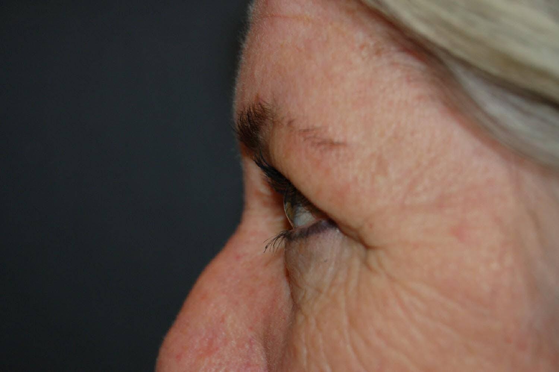 Blepharoplasty Gallery - Patient 36535135 - Image 3