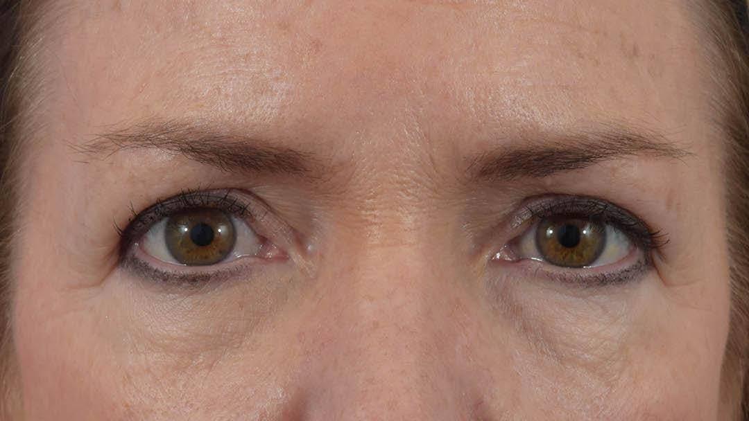 Blepharoplasty Gallery - Patient 36535136 - Image 2