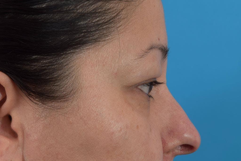 Blepharoplasty Gallery - Patient 36535137 - Image 3