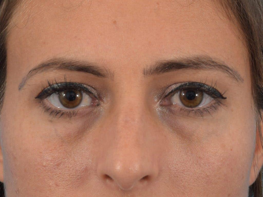 Blepharoplasty Gallery - Patient 36535138 - Image 1
