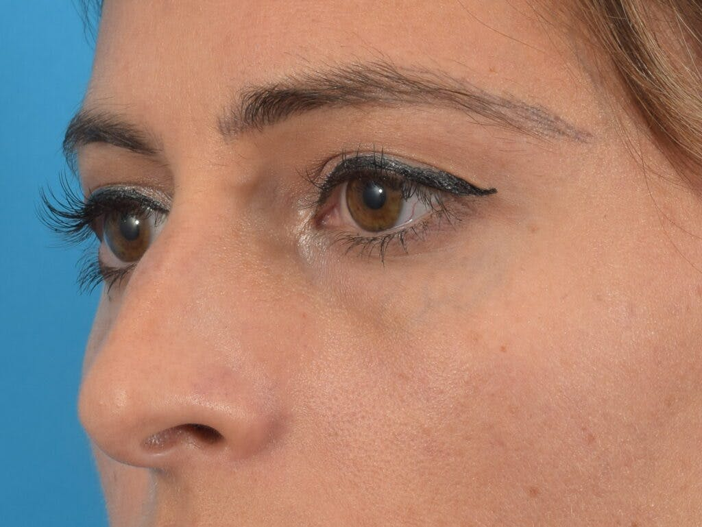 Blepharoplasty Gallery - Patient 36535138 - Image 3