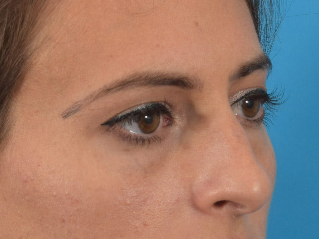Blepharoplasty Gallery - Patient 36535138 - Image 5