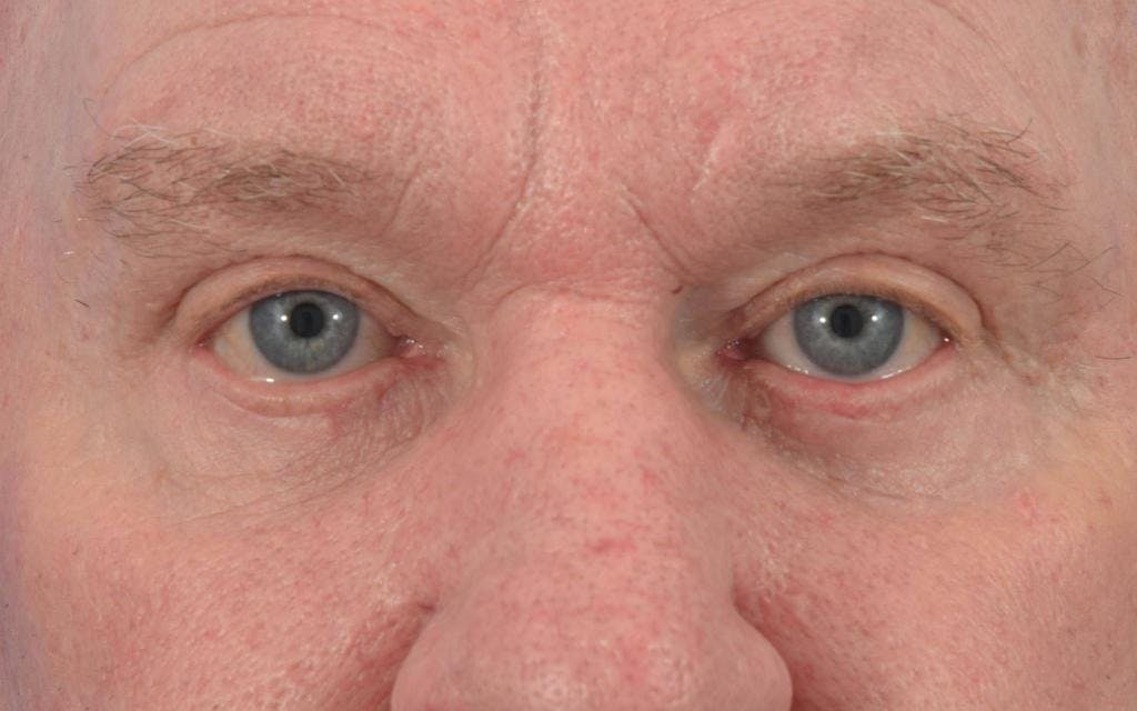 Blepharoplasty Gallery - Patient 57583729 - Image 2