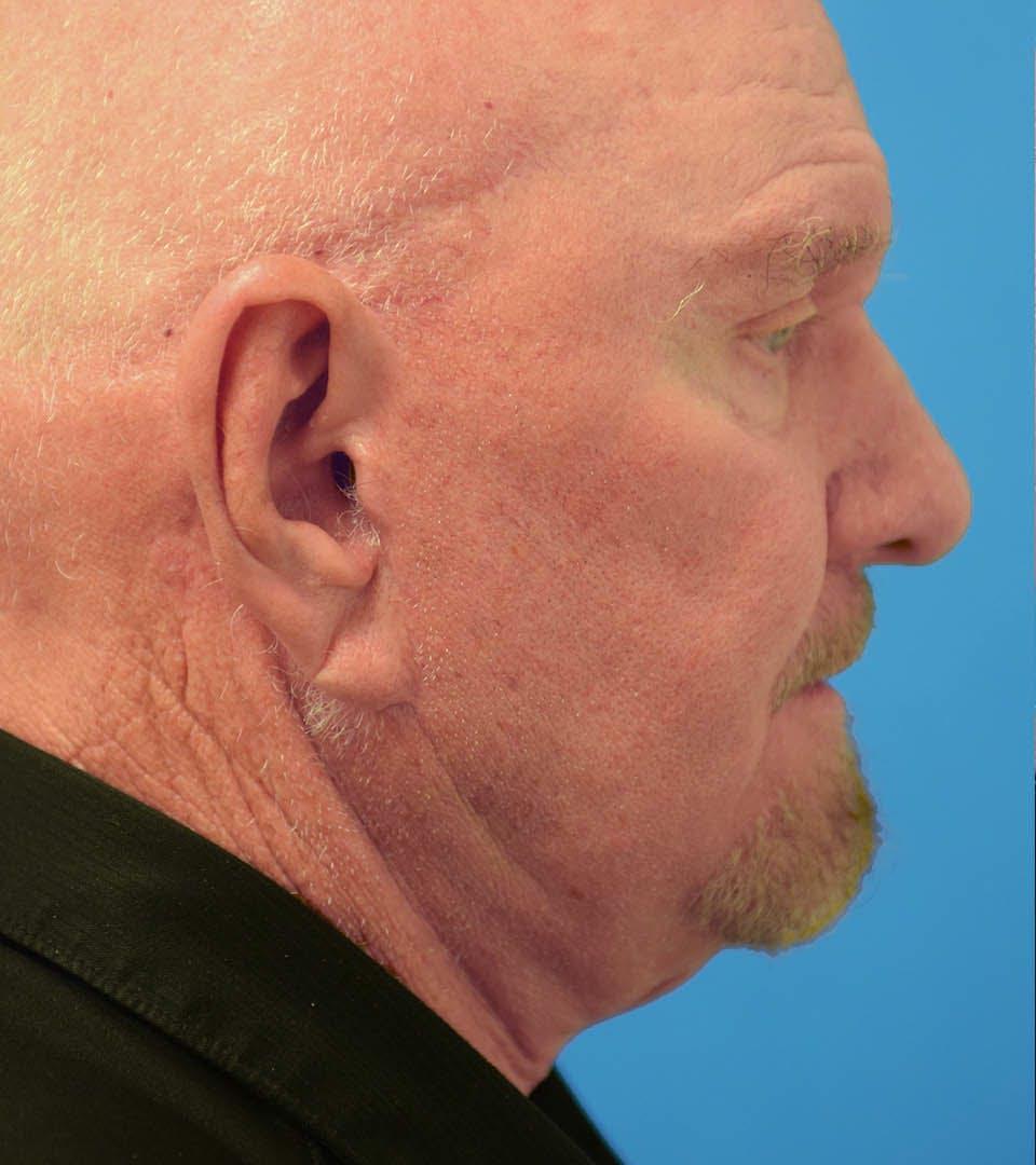 Facelift/Neck Lift Gallery - Patient 36543113 - Image 1