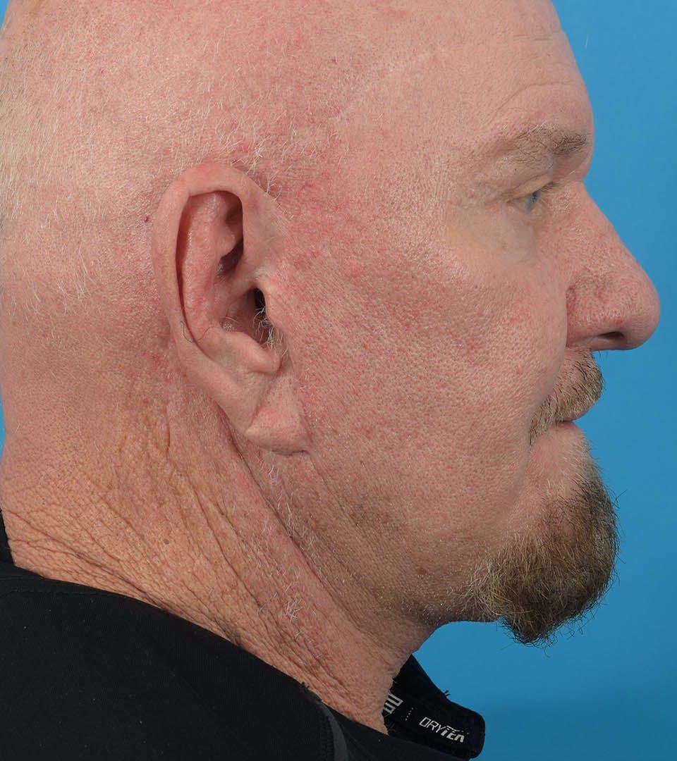 Facelift/Neck Lift Gallery - Patient 36543113 - Image 2