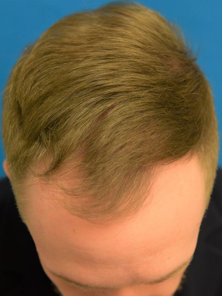 Hair Restoration Gallery - Patient 36543146 - Image 1