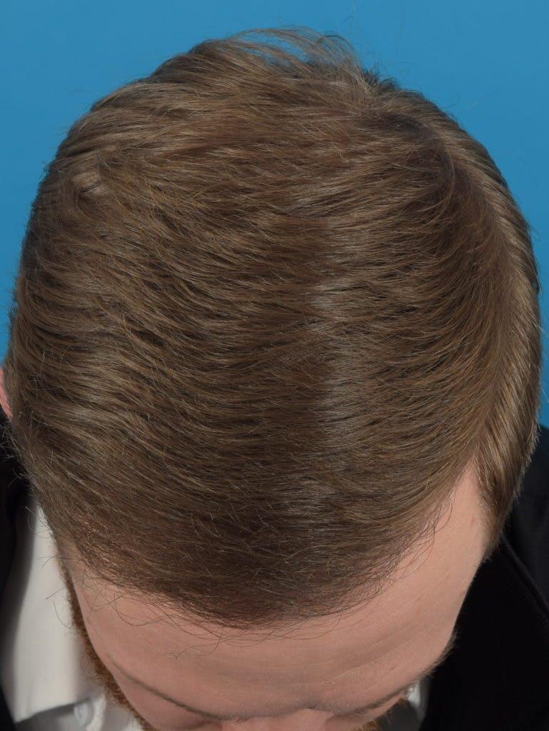 Hair Restoration Gallery - Patient 36543146 - Image 2