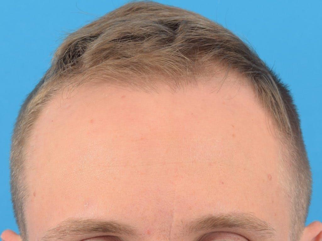 Hair Restoration Gallery - Patient 36543146 - Image 3