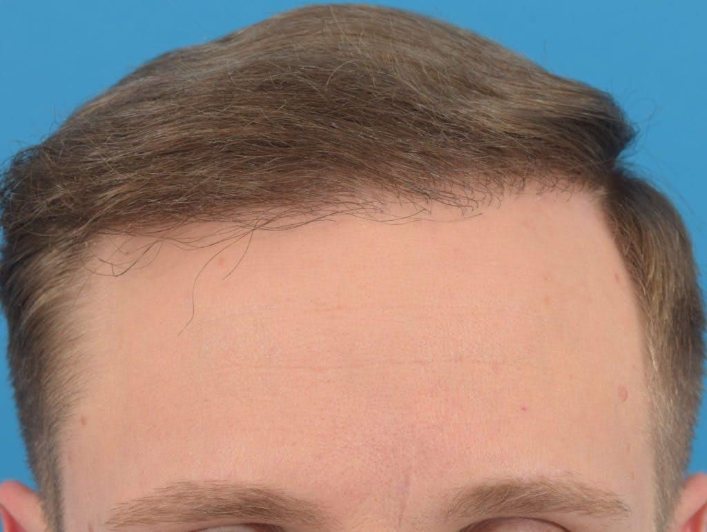 Hair Restoration Gallery - Patient 36543146 - Image 4