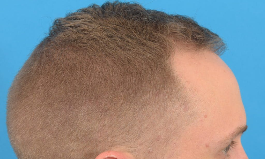 Hair Restoration Gallery - Patient 36543146 - Image 5