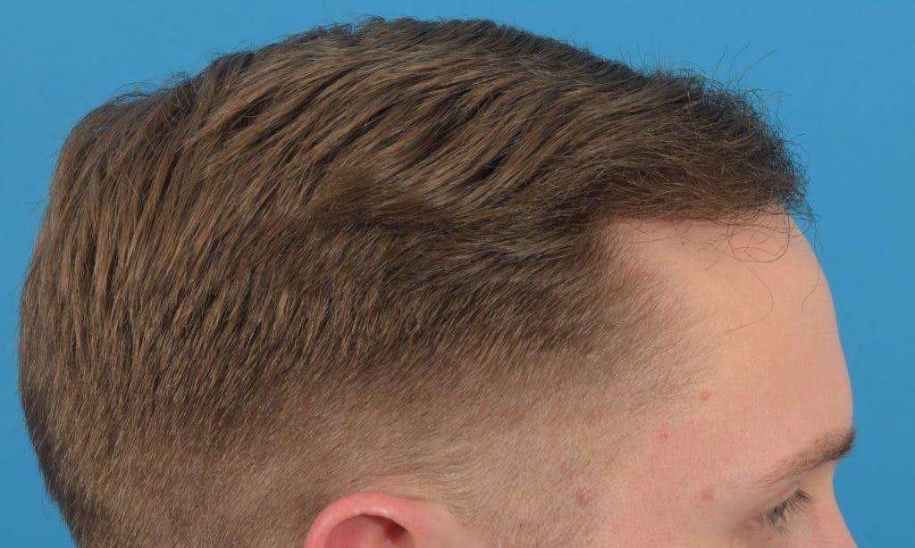 Hair Restoration Gallery - Patient 36543146 - Image 6