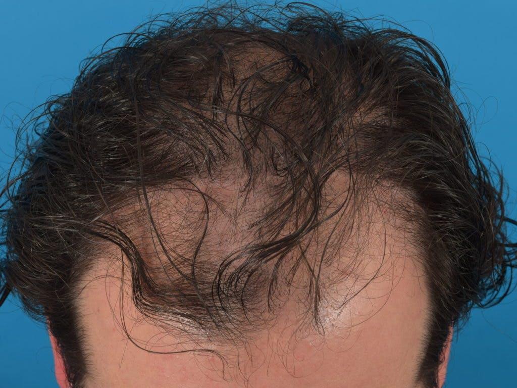 Hair Restoration Gallery - Patient 36543147 - Image 1