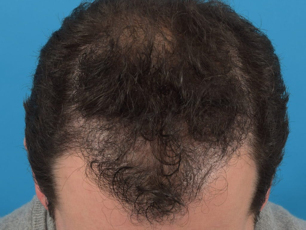 Hair Restoration Gallery - Patient 36543147 - Image 2