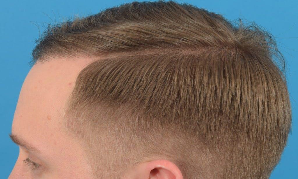 Hair Restoration Gallery - Patient 36543146 - Image 8