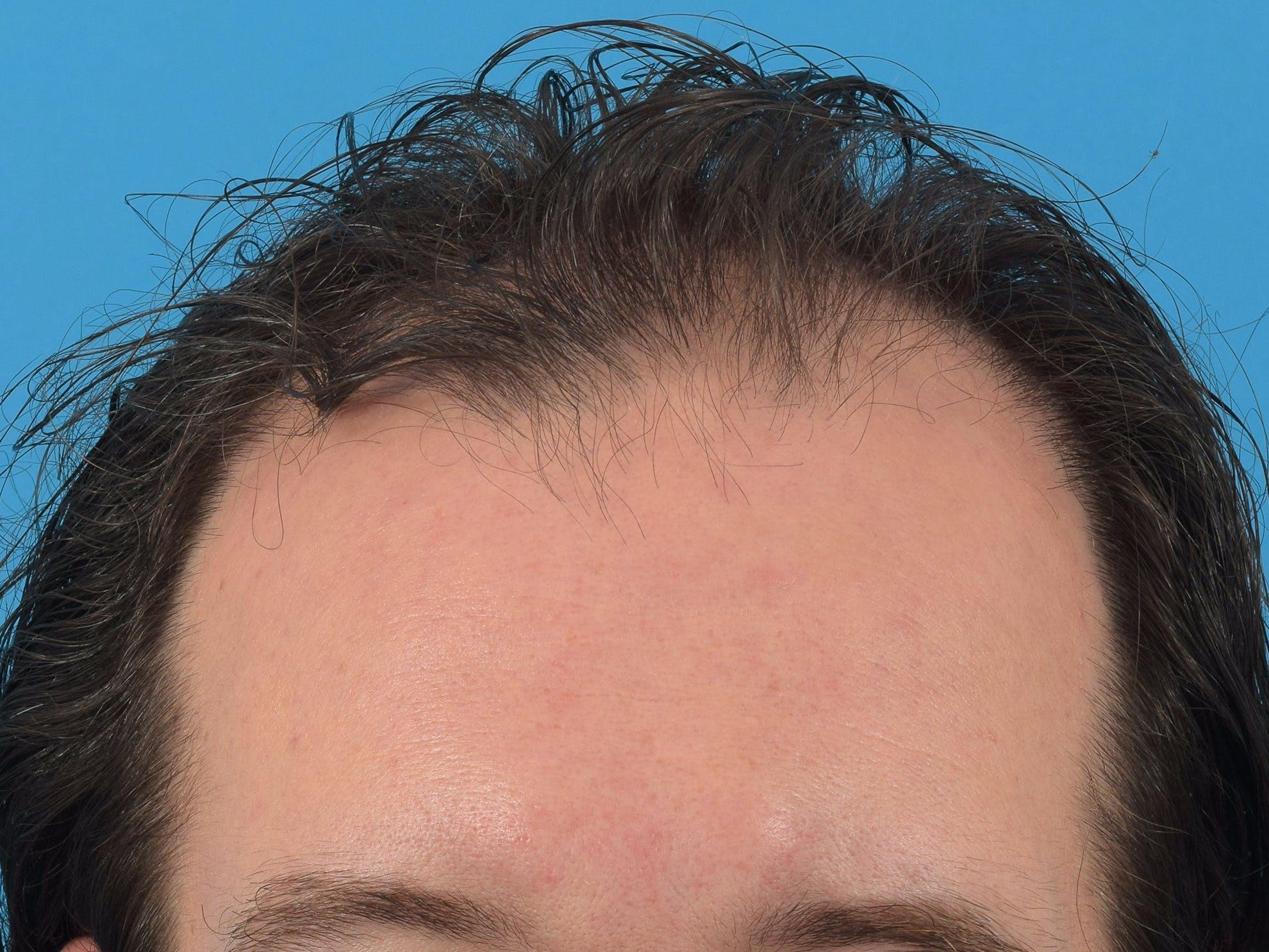 Hair Restoration Gallery - Patient 36543147 - Image 3