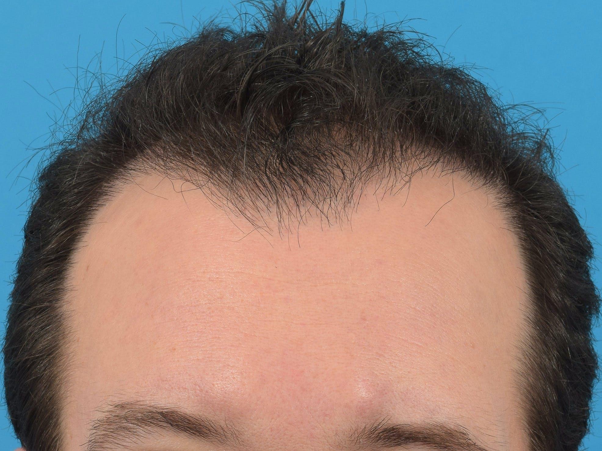 Hair Restoration Gallery - Patient 36543147 - Image 4
