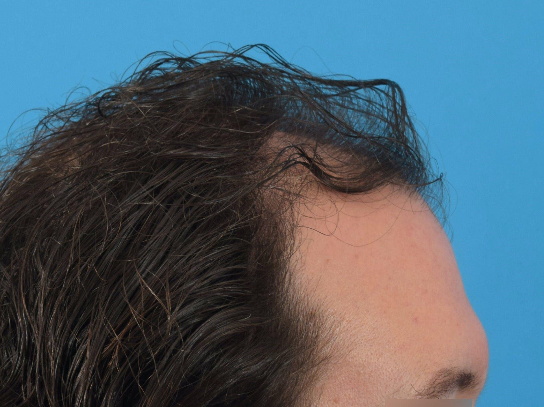 Hair Restoration Gallery - Patient 36543147 - Image 5