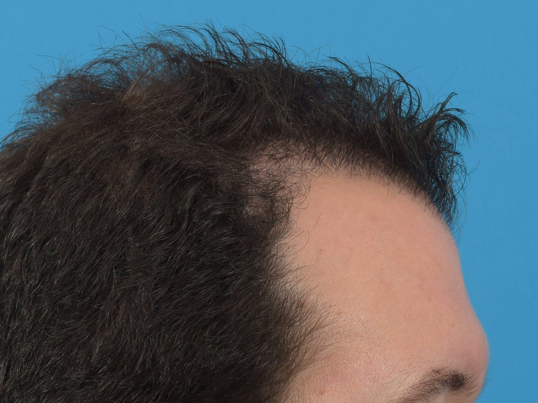Hair Restoration Gallery - Patient 36543147 - Image 6