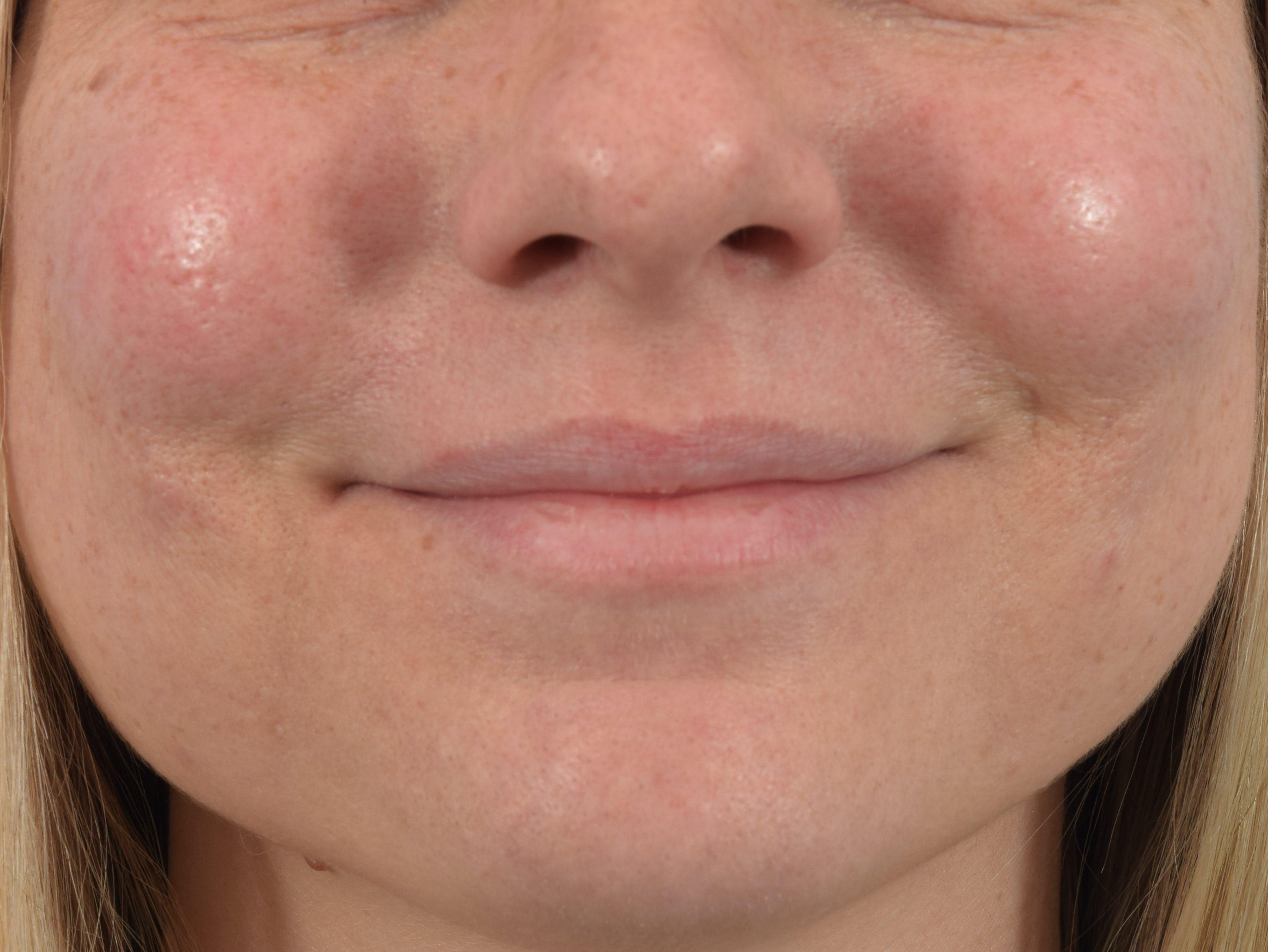 Filler - Lips Gallery - Patient 36543183 - Image 1