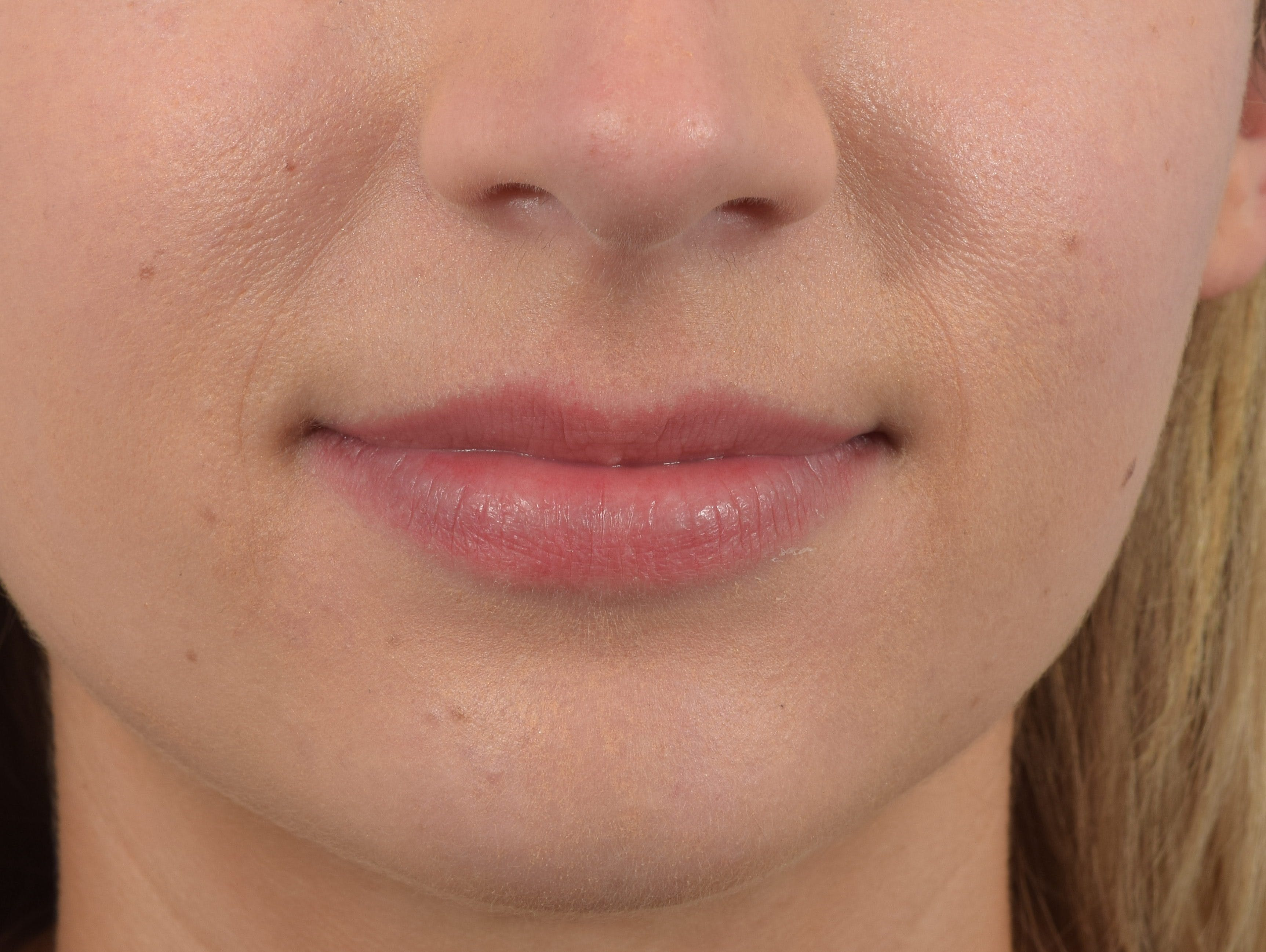 Filler - Lips Gallery - Patient 36543182 - Image 1