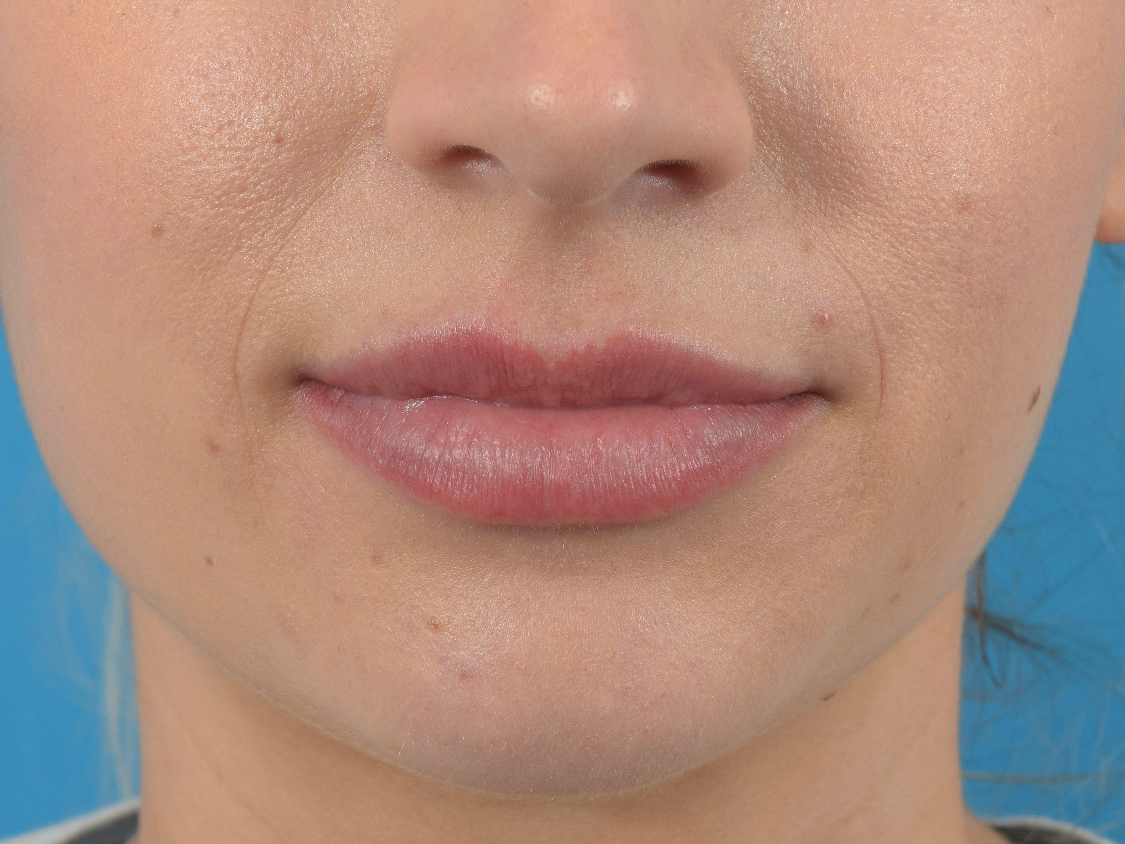 Filler - Lips Gallery - Patient 36543182 - Image 2