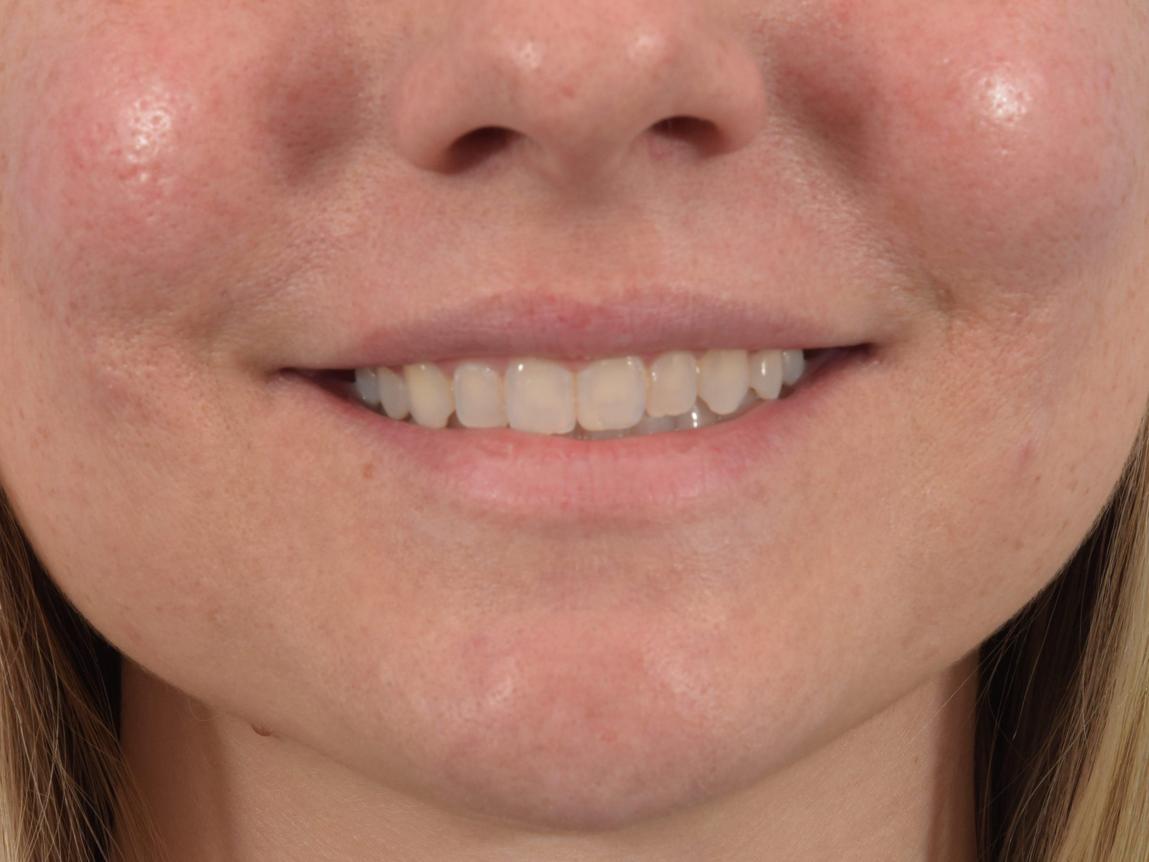 Filler - Lips Gallery - Patient 36543183 - Image 3