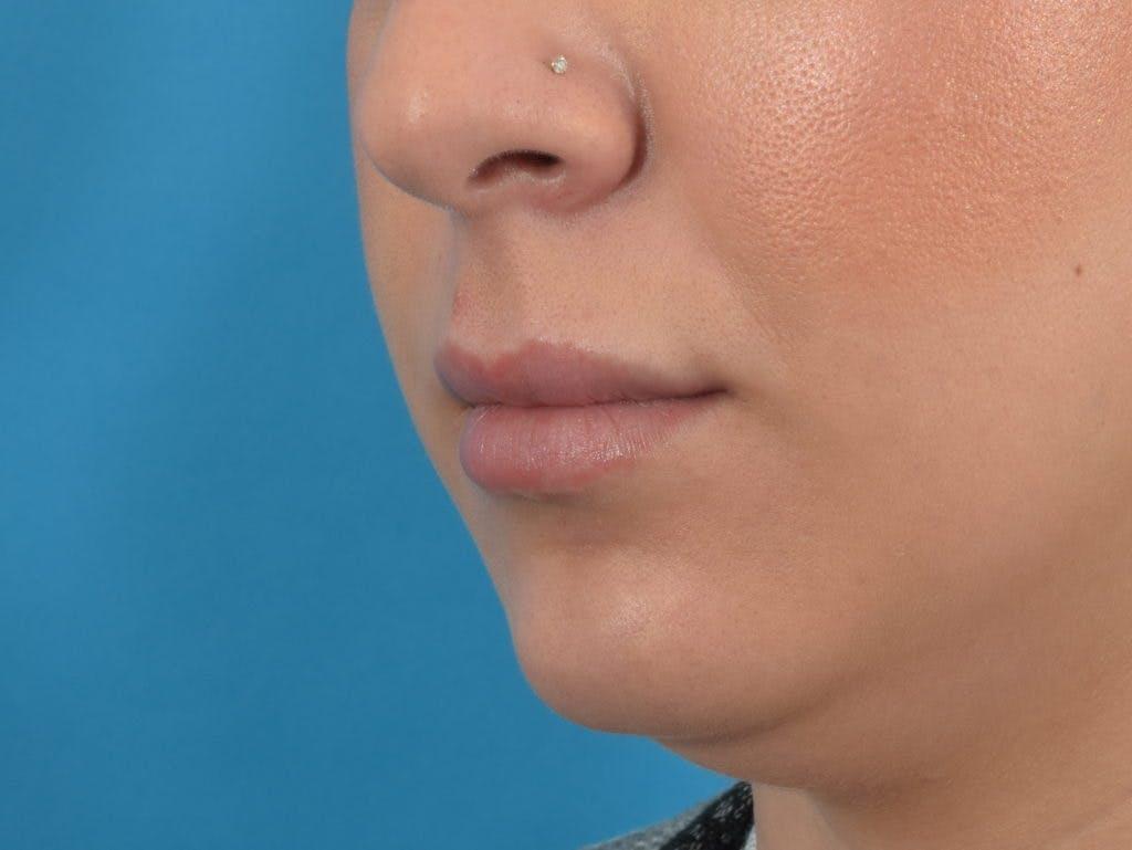 Filler - Lips Gallery - Patient 36543185 - Image 1