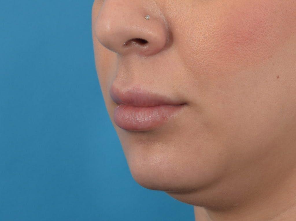 Filler - Lips Gallery - Patient 36543185 - Image 2