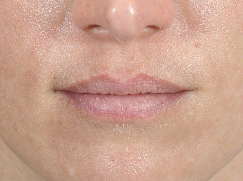 Filler - Lips Gallery - Patient 36543186 - Image 1