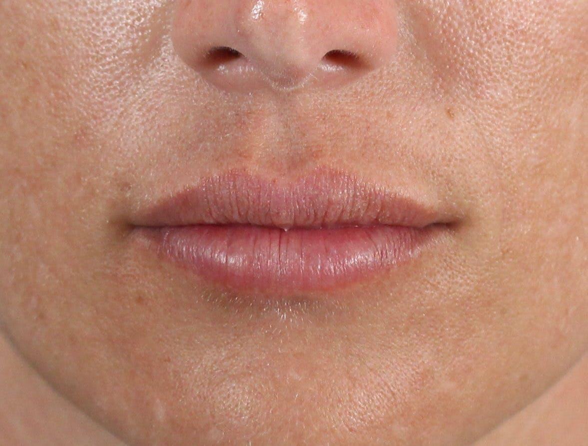 Filler - Lips Gallery - Patient 36543186 - Image 2