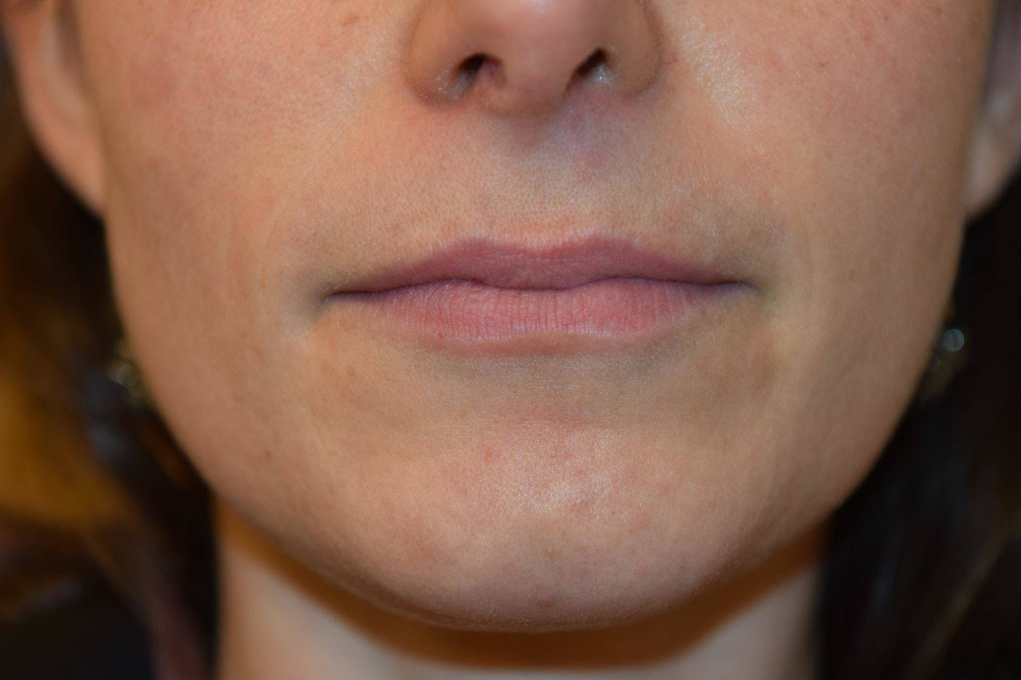 Filler - Lips Gallery - Patient 36543187 - Image 1