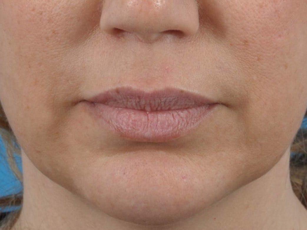 Filler - Lips Gallery - Patient 36543188 - Image 1