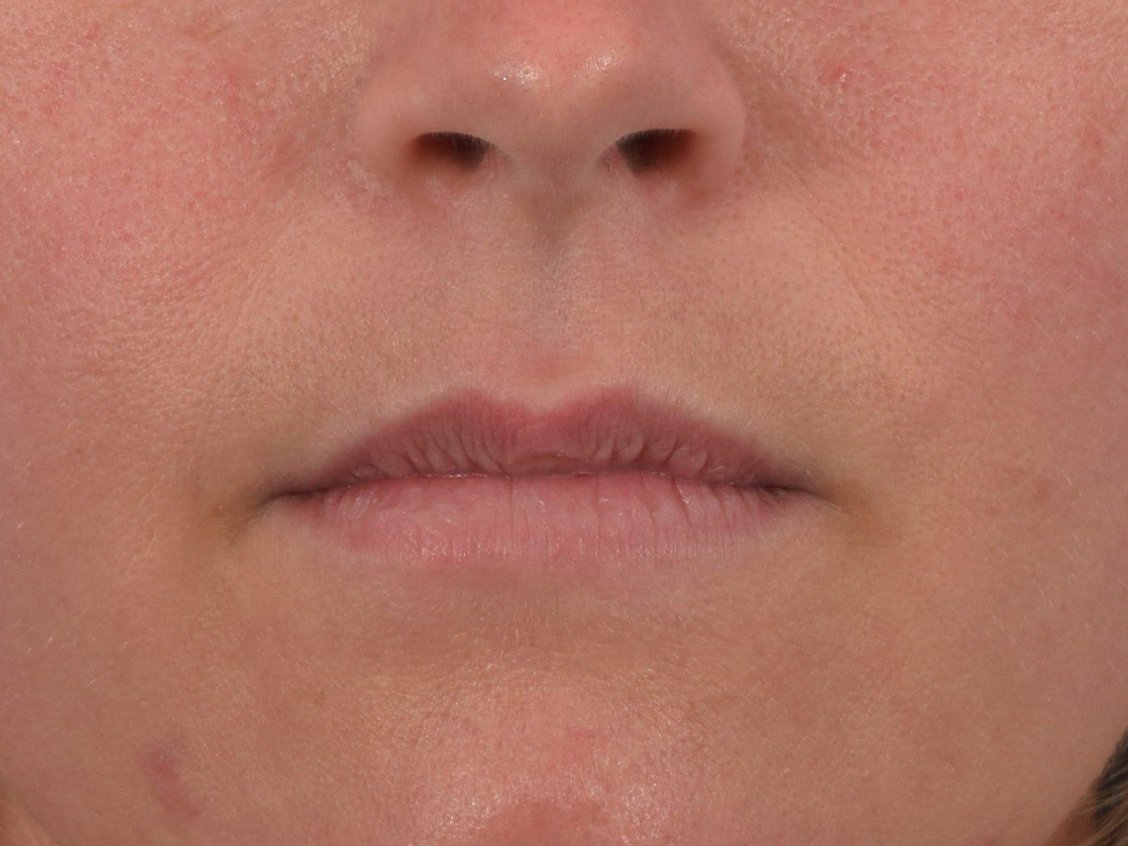 Filler - Lips Gallery - Patient 36543189 - Image 1