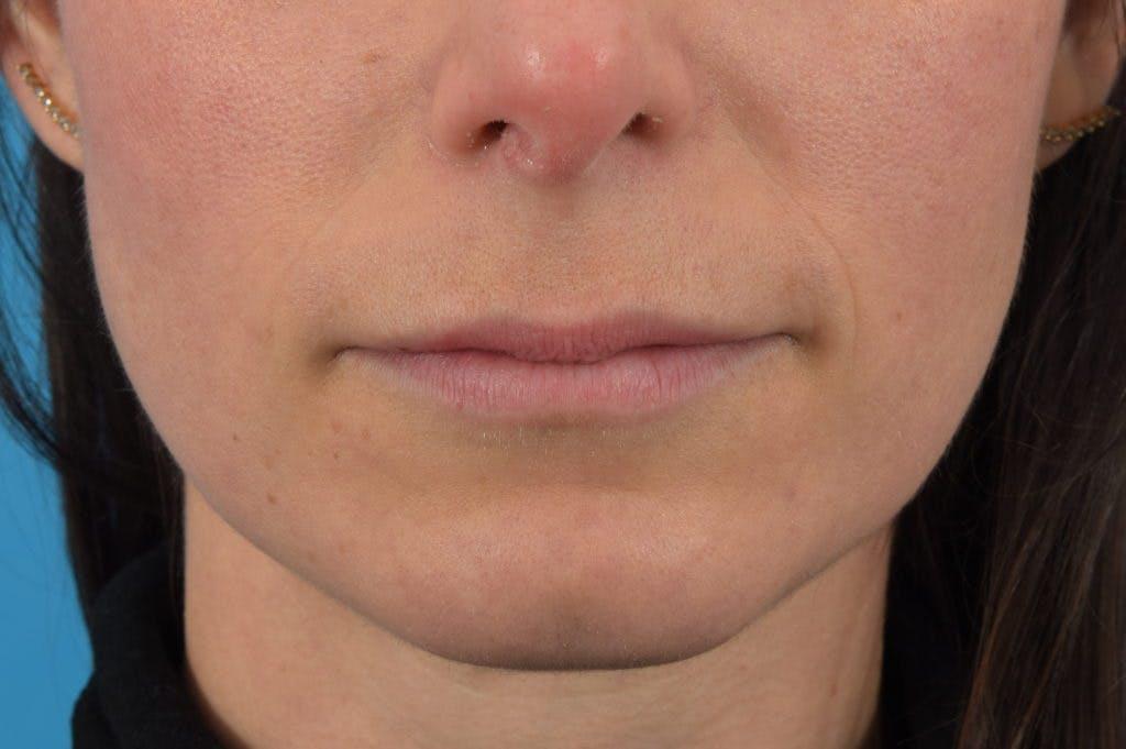Filler - Lips Gallery - Patient 36543191 - Image 1