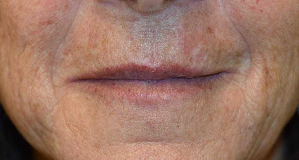 Filler - Lips Gallery - Patient 36543190 - Image 2