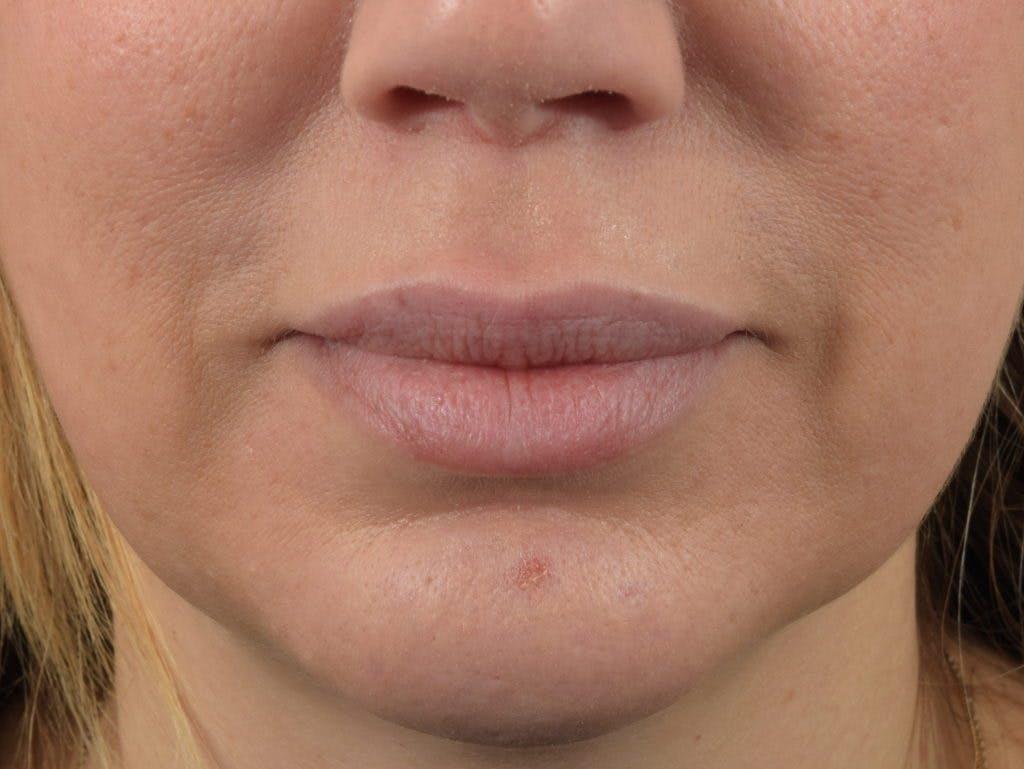 Filler - Lips Gallery - Patient 36543188 - Image 2