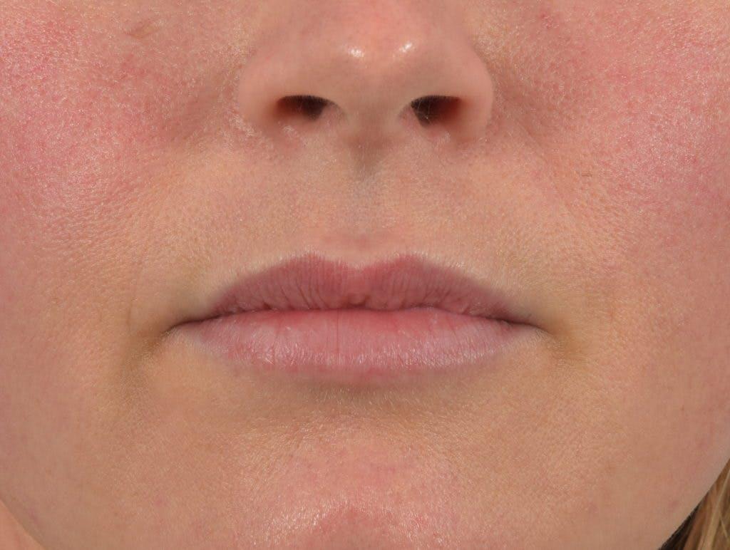 Filler - Lips Gallery - Patient 36543189 - Image 2