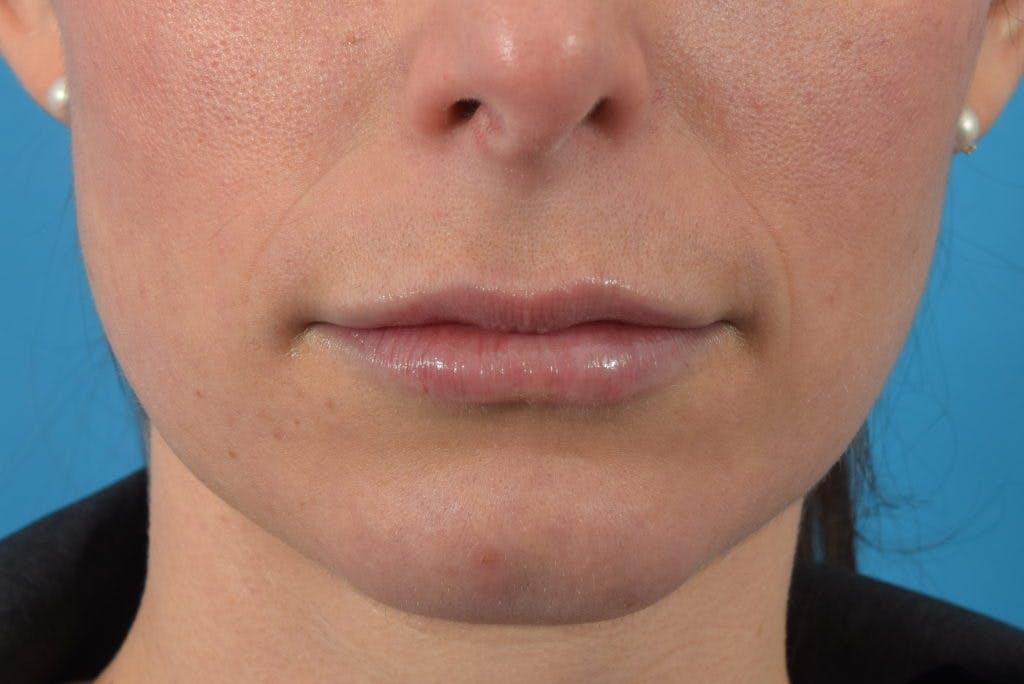 Filler - Lips Gallery - Patient 36543191 - Image 2