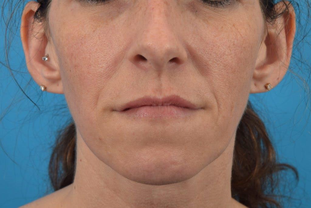 Filler - Lips Gallery - Patient 36543192 - Image 2