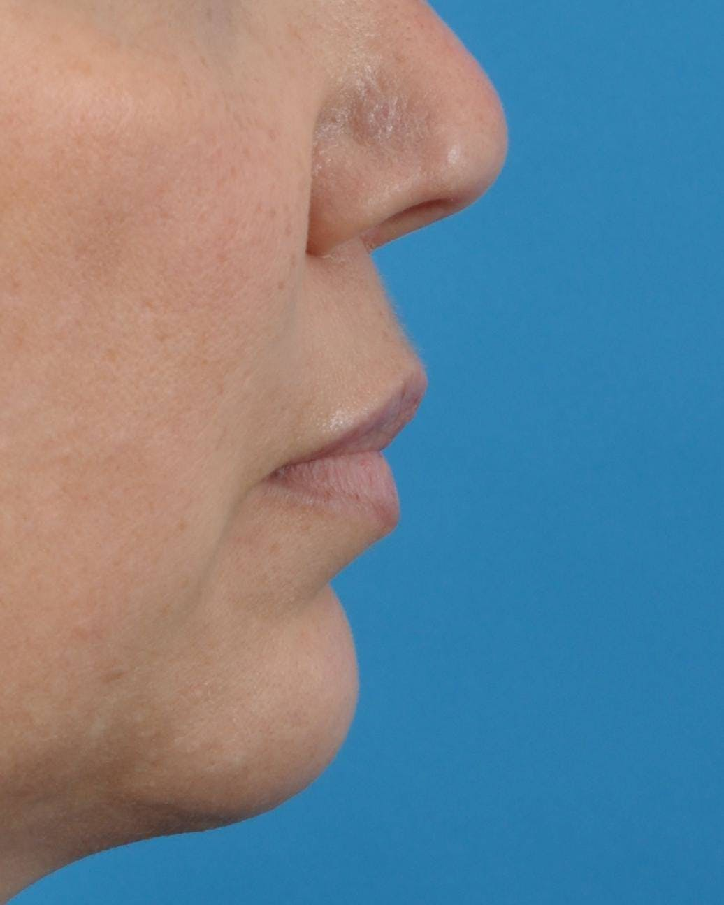 Filler - Lips Gallery - Patient 36543188 - Image 3