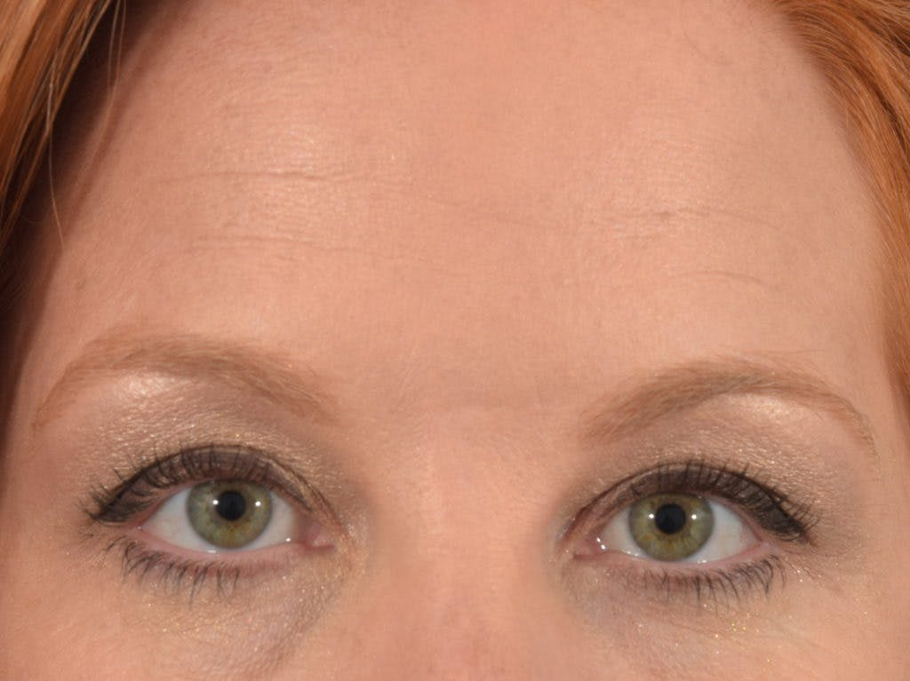 Neuromodulators (Botox, Dysport...) Gallery - Patient 36543201 - Image 1