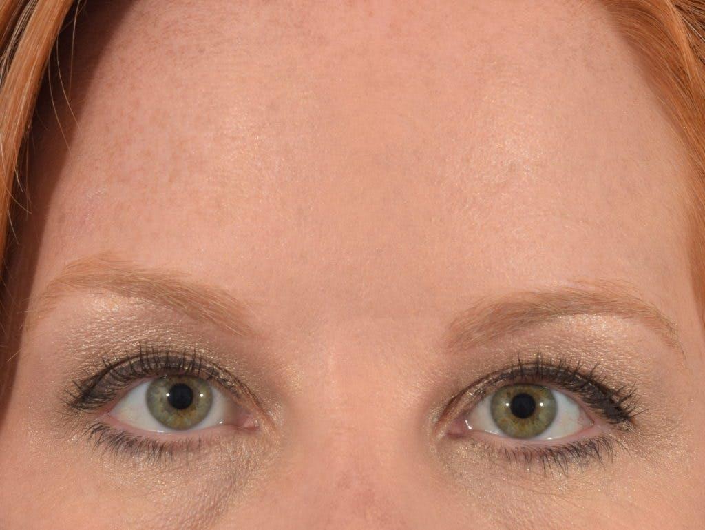Neuromodulators (Botox, Dysport...) Gallery - Patient 36543201 - Image 2