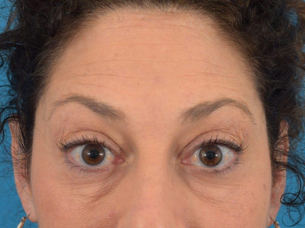 Neuromodulators (Botox, Dysport...) Gallery - Patient 36543202 - Image 2