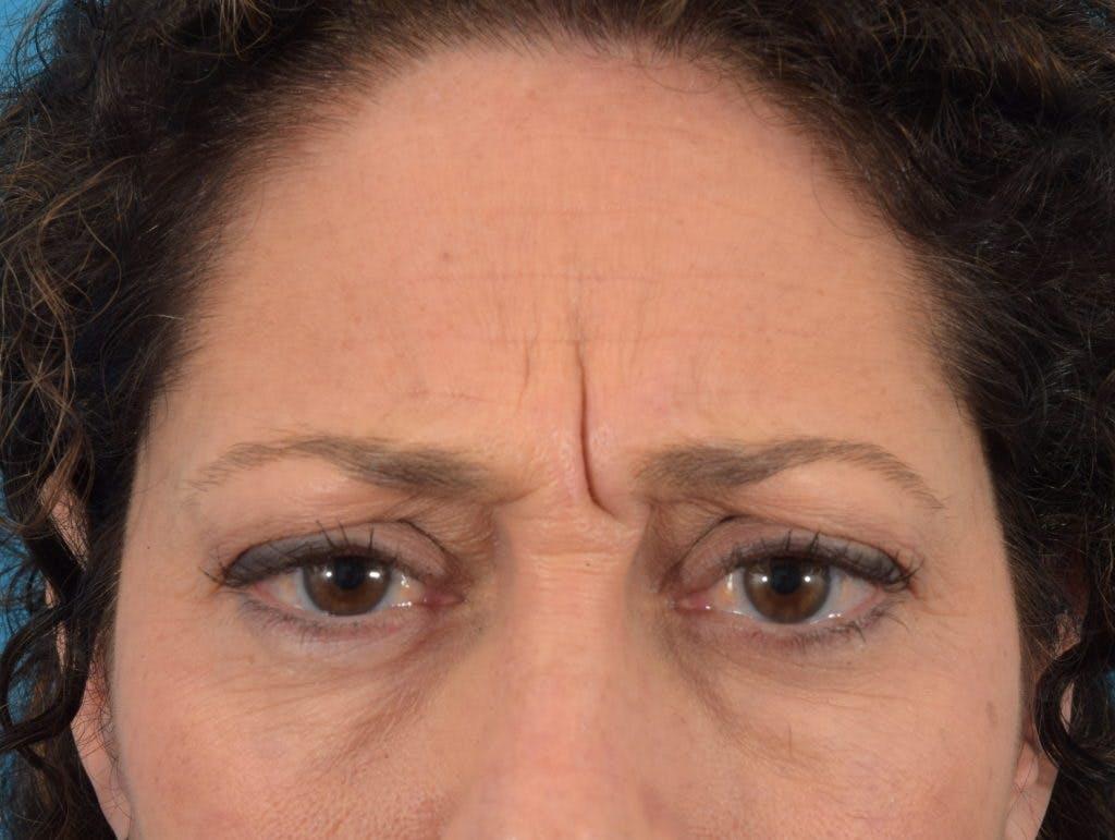 Neuromodulators (Botox, Dysport...) Gallery - Patient 36543202 - Image 3