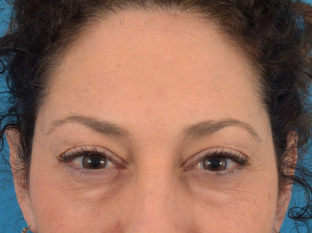 Neuromodulators (Botox, Dysport...) Gallery - Patient 36543202 - Image 4