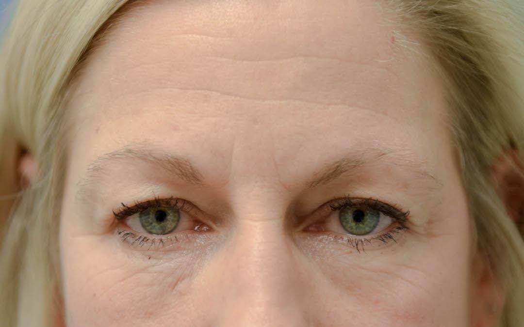 Neuromodulators (Botox, Dysport...) Gallery - Patient 36543203 - Image 1