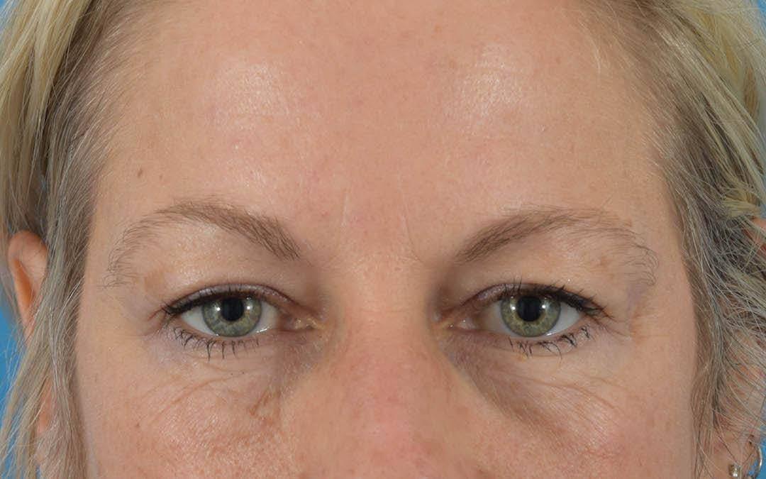 Neuromodulators (Botox, Dysport...) Gallery - Patient 36543203 - Image 2